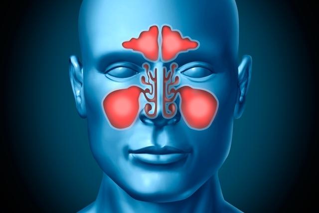 Descrição: Como curar a sinusite mais rápido